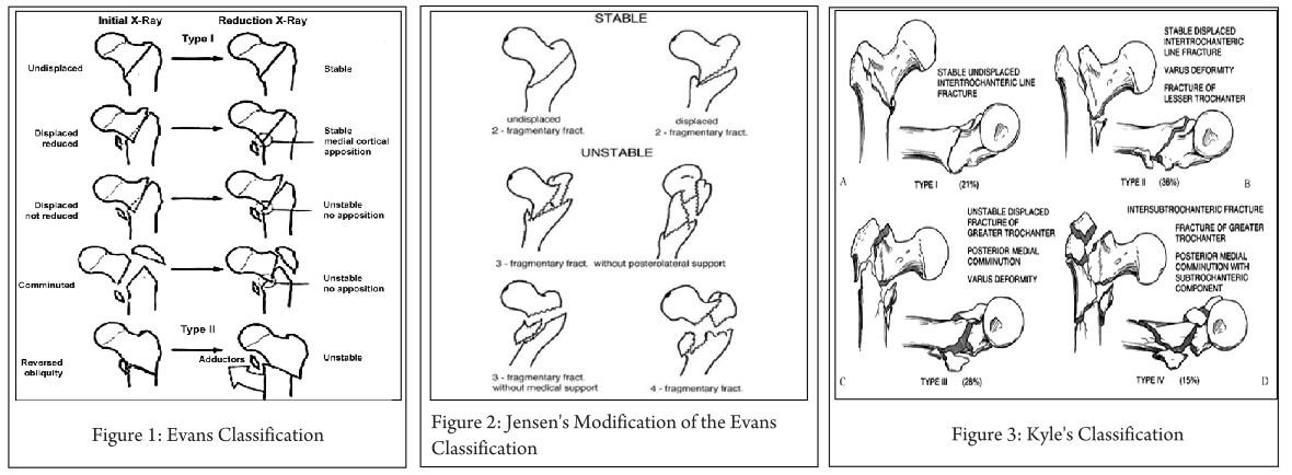 Classifications Of Intertrochanteric Fractures And Their Clinical