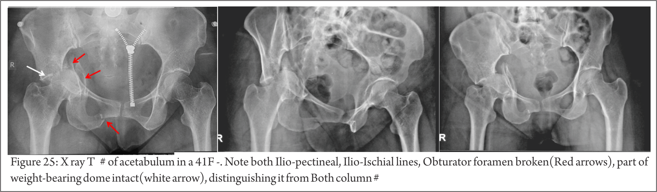 Understanding Clinical Radiology of Fracture Acetabulum - Trauma ...