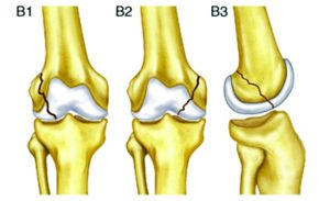 Fig.1 AO/OTA classification for Type B distal femoral fractures.