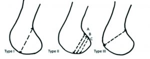 Fig. 2 Letenneur classification of Hoffa's fracture