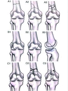 Figure 1: OTA Classification of Distal Femoral Fractures