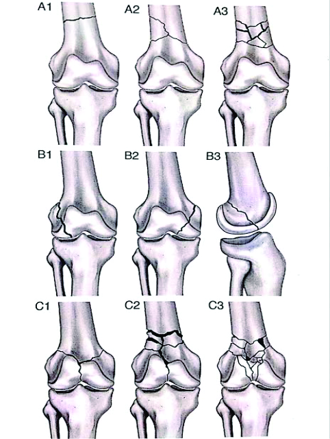 Distal Femoral Fractures: Complications and How to Avoid them ...