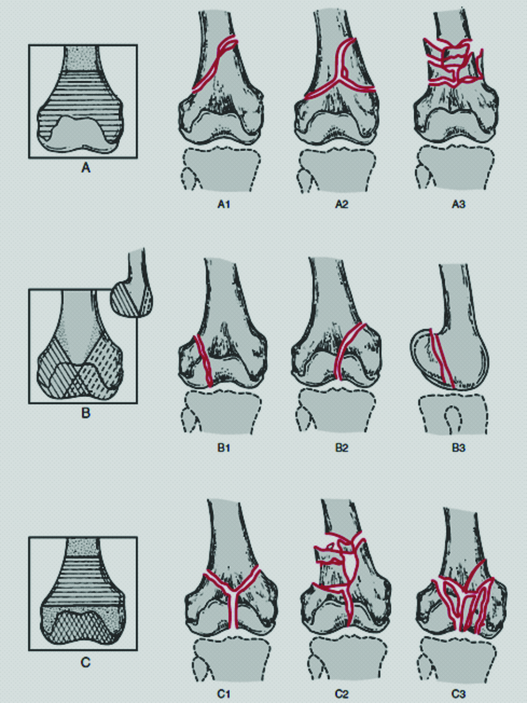 Classification of Distal Femur Fractures and Their Clinical ...