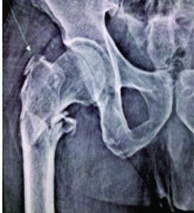 Figure 5: pre-operative X-ray showing IT fracture femur right side
