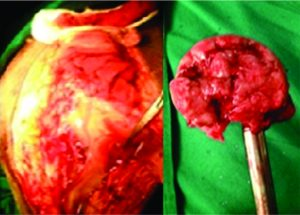 Figure 8: intra-operatively pus was present at the operative site and the head was completely deformed