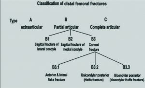 Table 1: Basic algorithm – Distal femur fracture classification – Müller AO :