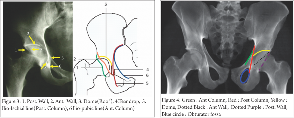 Understanding Clinical Radiology Of Fracture Acetabulum
