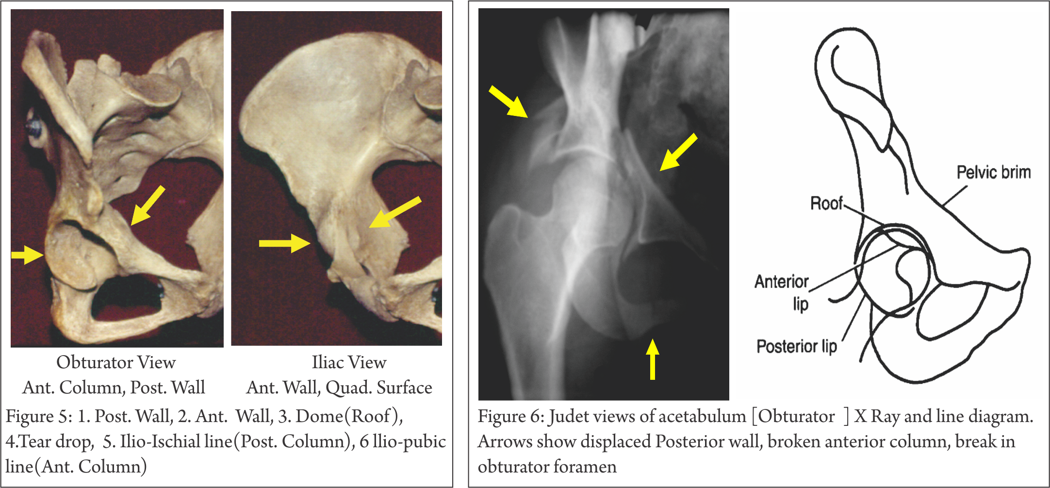 Understanding Clinical Radiology Of Fracture Acetabulum Trauma